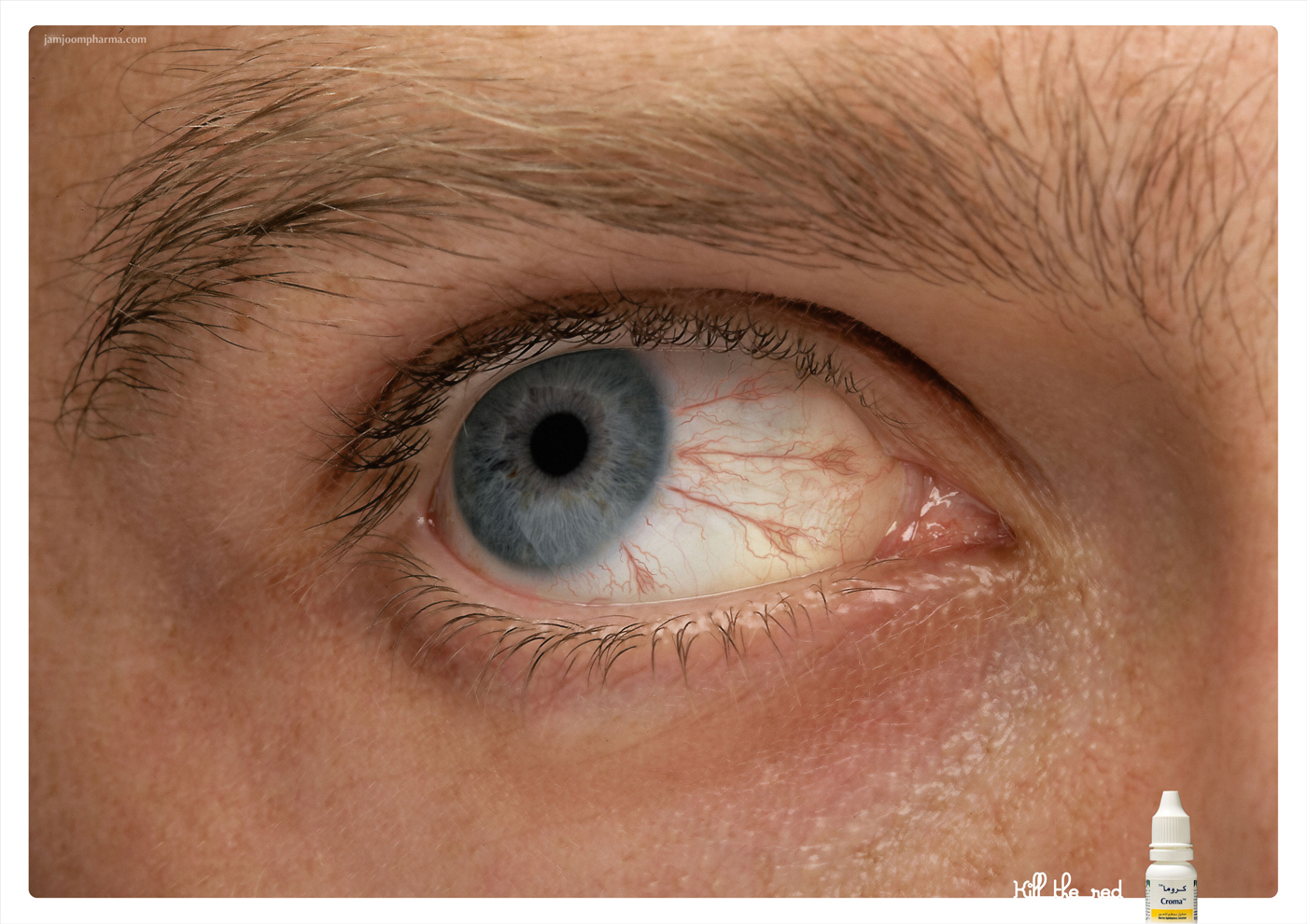 глазные капли против аллергии самые лучшие